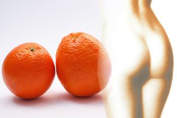 Cellulite entfernen - Orangenhaut